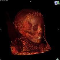 Trobats els tumors més antics en mòmies egípcies