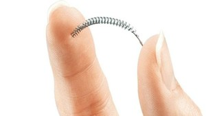 El anticonceptivo Essure.
