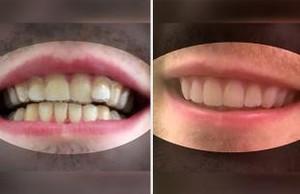 Los dientes de Amos Dudley, antes y después de su tratamiento.