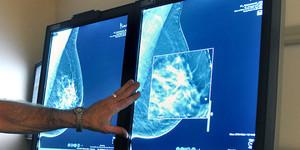 Un metge observa la mamografia d'una pacient.