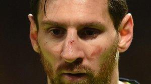 El Barça aprende a encajar los golpes
