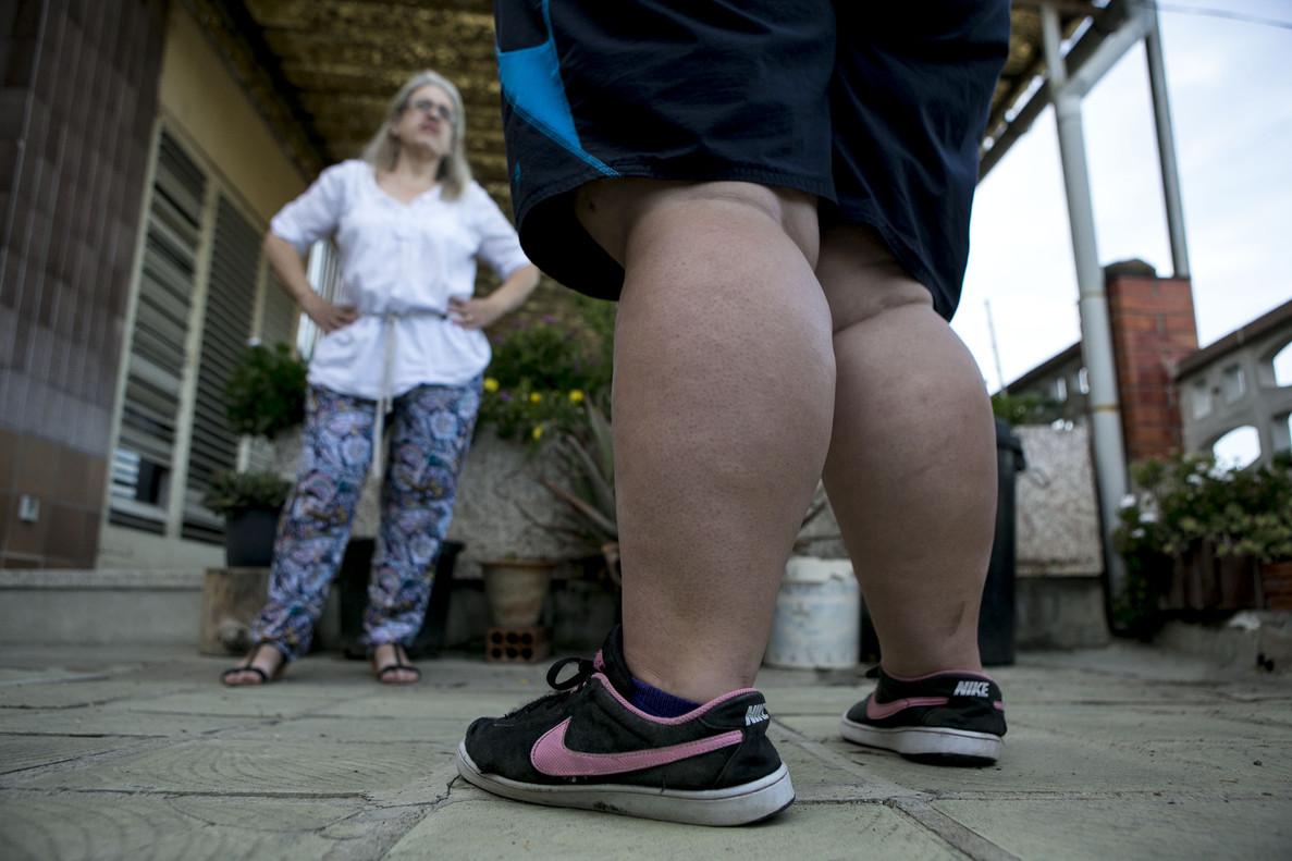 Una mujer con obesidad morbida, en una imagen de archivo.