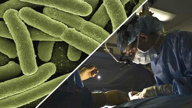 Las superbacterias serán la principal causa de muerte en 2050