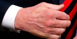 El dedo pulgar de Macron marcado en la mano deTrump tras el fuerte saludo de los mandatarios en el G-7.