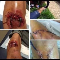Imagen de las heridas que sufrió Ventoso con el freno de disco.