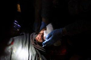 El joven herido en el ojo durante las cargas en el aeropuerto.