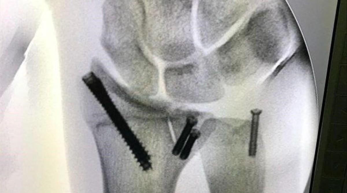 El doctor Xavier Mir ha reconstruido la muñeca izquierda de Joan Barreda con varios tornillos.