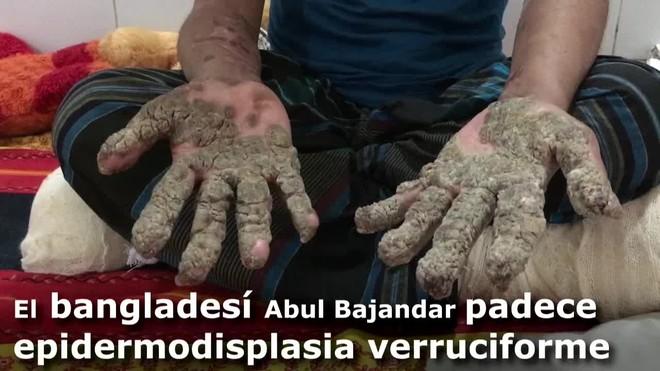 Abul Bajandar se hizo mundialmente conocido por las grandes verrugas que cubrían su cuerpo y que le llevaron a ingresar hace hoy dos años en un hospital de Dacca.