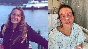 Marta B., la joven de Terrassa accidentada en Estados Unidos.