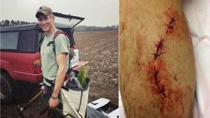 Dylan, el jove que ha sobreviscut a atacs de serp, os i tauró