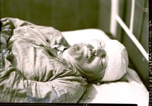 Trotsky, en el hospital, tras sufrir el ataque de Ramón Mercader.