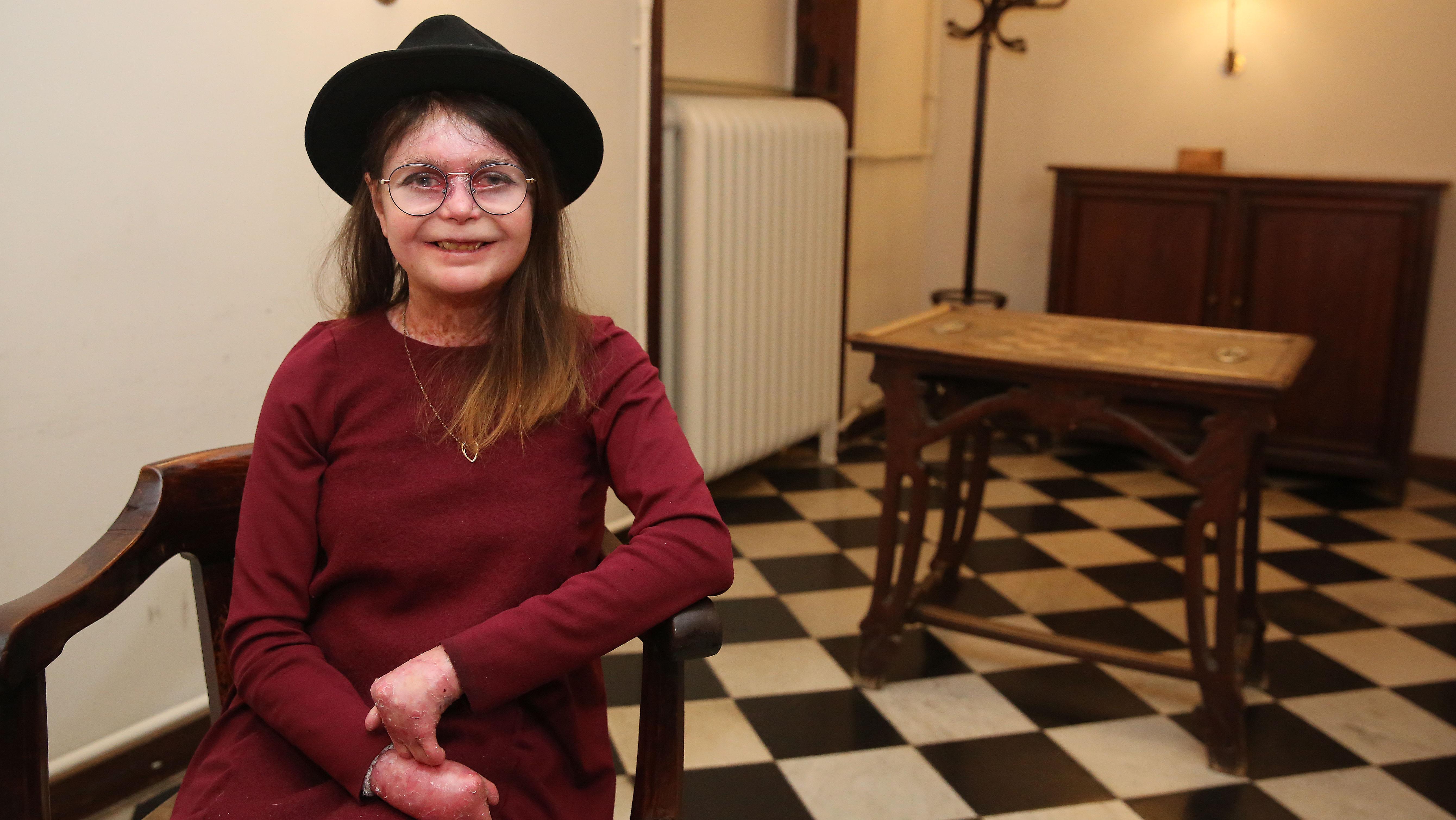 Entrevista con Nina Roma, enferma de piel de mariposa.