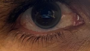 Un ojo.