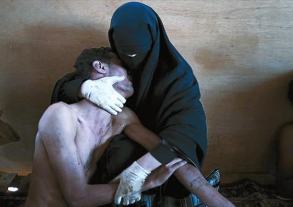 59ed9c5566 PRIMAVERA ÁRABE 3La foto premiada muestra a un herido en las protestas de  Yemen
