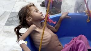 Una niña sufre las consecuencias de la extrema pobreza en Yemen.