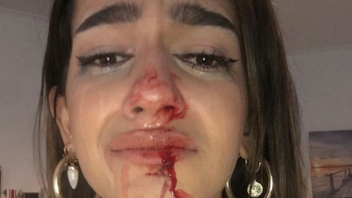 Els Mossos investiguen la pallissa a una jove transsexual a Barcelona