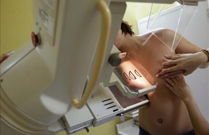 dcaminal20727630 a woman undergoes a mammography exam a special type of x ra160805194251