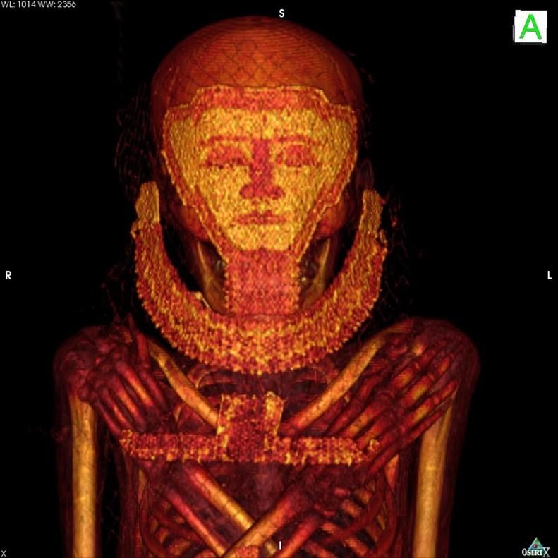 Los investigadores de la UGR realizan el TAC a las momias en el Hospital Universitario de Asuan.