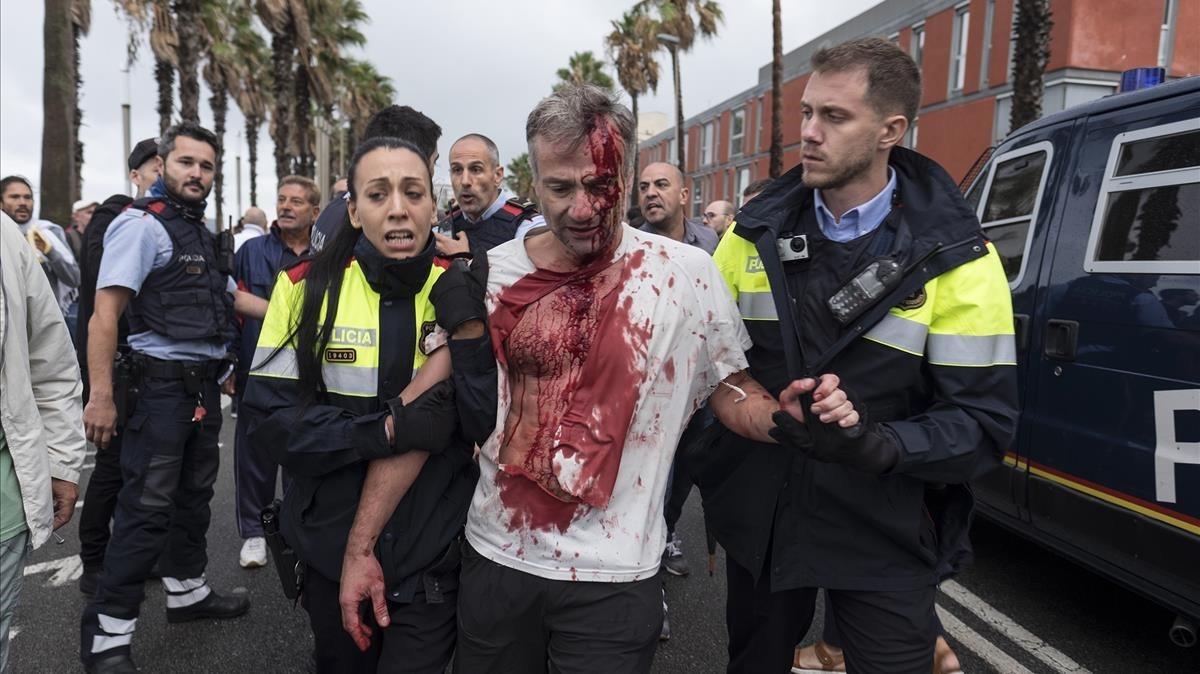 Uno de los heridos en la Escola Mediterrànea de la Barceloneta durante las cargas policiales el 1-O.