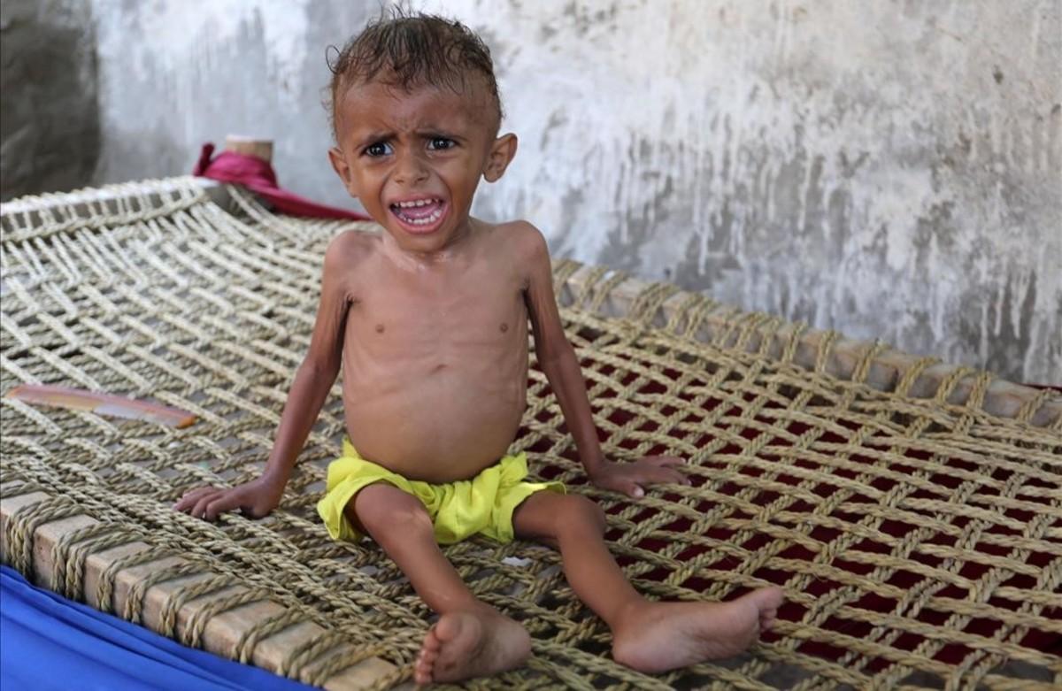 Un niño yemení malnutrido en la ciudad de Hodeida, enYemen.