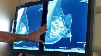 Primera erradicación de un cáncer de mama avanzado con inmunoterapia