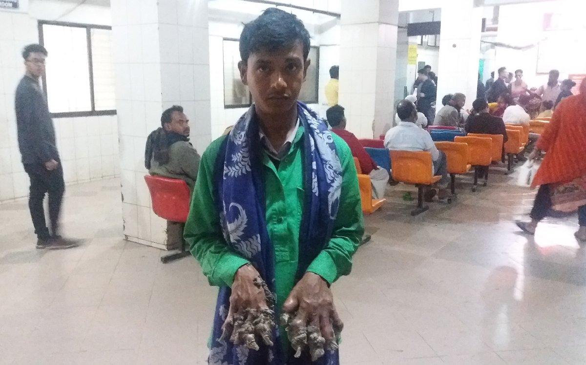 Abul Bajandar vuelve a tener las manos con enormes verrugas, lo que le obligará a pasar por quirófano.