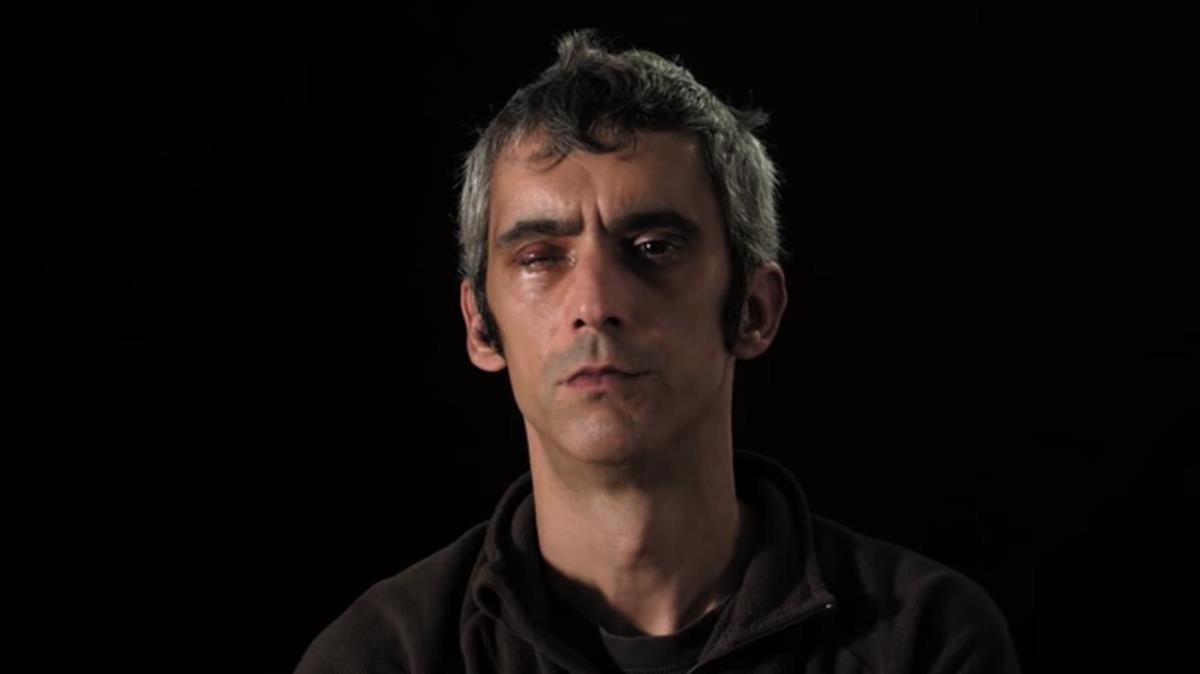 Roger Español, que perdió la visión de un ojo por el impacto de una pelota de goma el 1-O.
