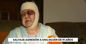 La mujer agredida, durante su intervención en El espejo público, de Antena 3.