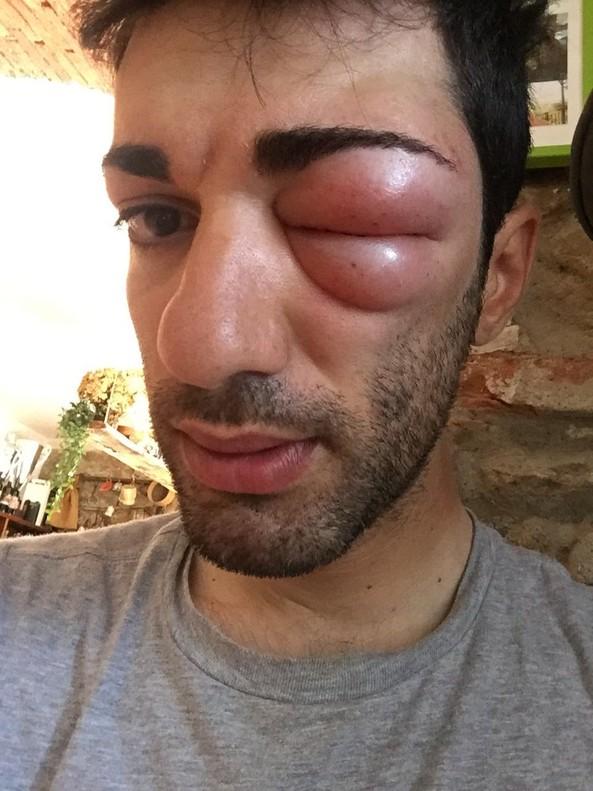 Danilo Cela tras la picada de un insecto