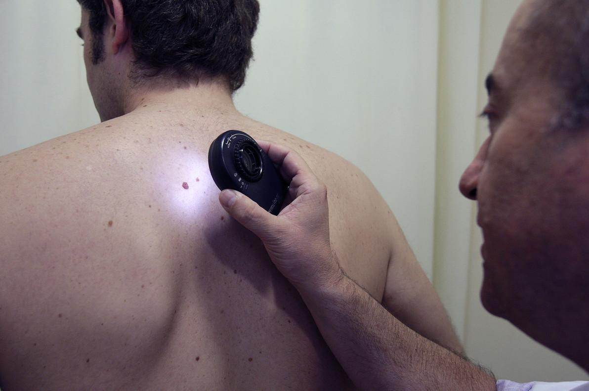Un médico examina a un paciente para detectar o descartar posibles señales de cáncer de piel.