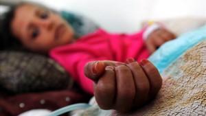 Una niña con desnutricion recibe tratamientomedicoen la sala de emergencias de un hospital de Saná.