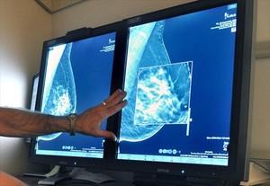 Un radiólogo compara dos mamografías para detectar tumores en un hospital de Wichita Falls (Tejas, EEUU).