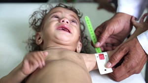 Iemen, un infern per als infants