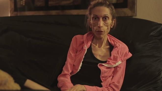 L'actriu de 37 anys, 1,70 i 20 quilos de pes Rachel Farrokh busca recaptar fons per poder curar-se de la greu anorèxia que pateix.