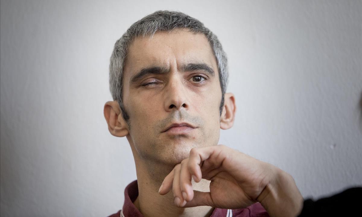 Roger Españolperdió la visiónen un ojo a causa del impacto de una pelota de goma, disparada por la Policía Nacional, cerca del colegio Ramon Llull durante el referéndum del 1-O.