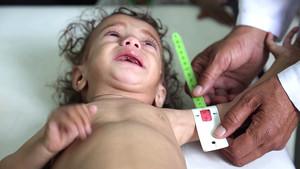 Yemen, un infierno para los niños