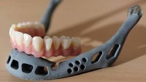 Mandíbula de titanio implantada a un niño de 10 años en China.