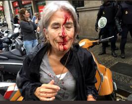 Una mujer con el rostro ensangrentado por las cargas policiales del 1-O