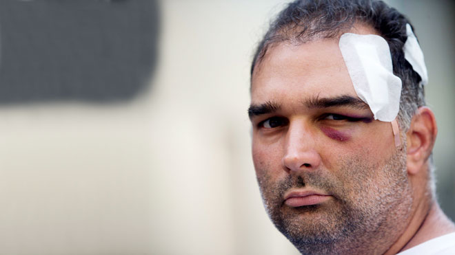 José Bravo, estadounidense de origen cubano, fue agredido el miércoles por un grupo de manteros.