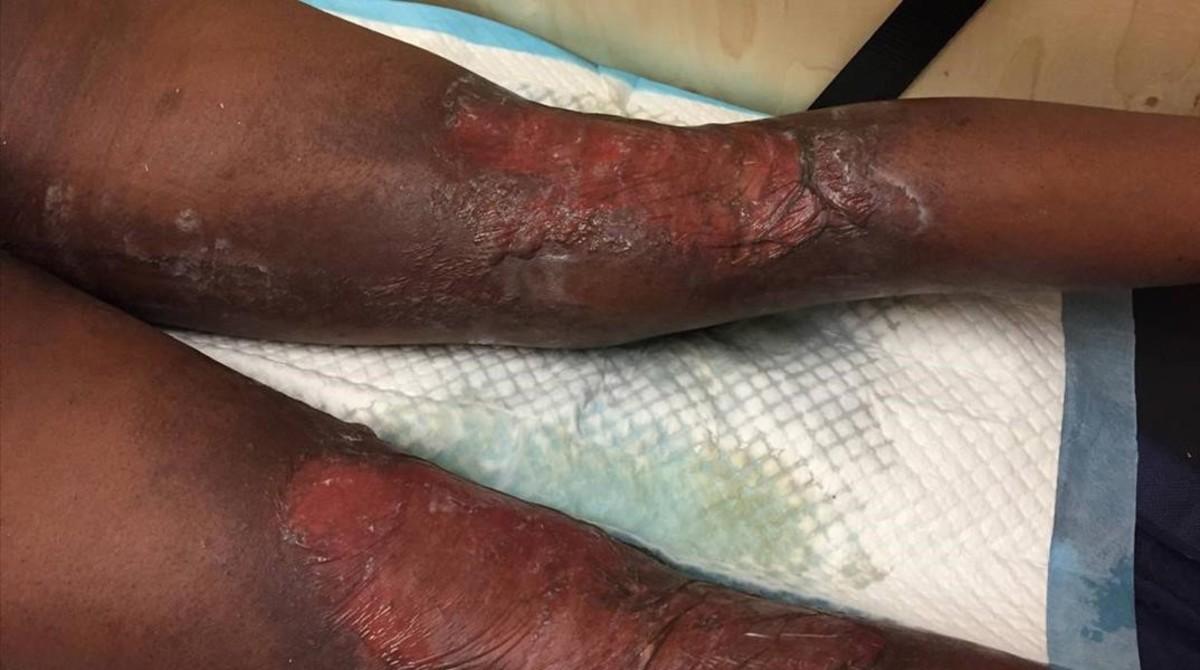 Quemaduras en las piernas de un inmigrante rescatado por Open Arms como consecuencia del contacto de carburante y agua de mar