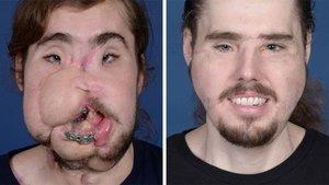 Cameron Underwood, antes y después de su intervención.