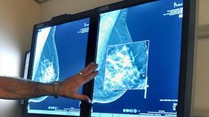 Una pacient recupera la pensió per les seqüeles del seu càncer de mama