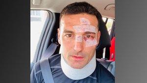 Lionel Scaloni ha mostrado en Twitter las heridas producidas a consecuencia del accidente.