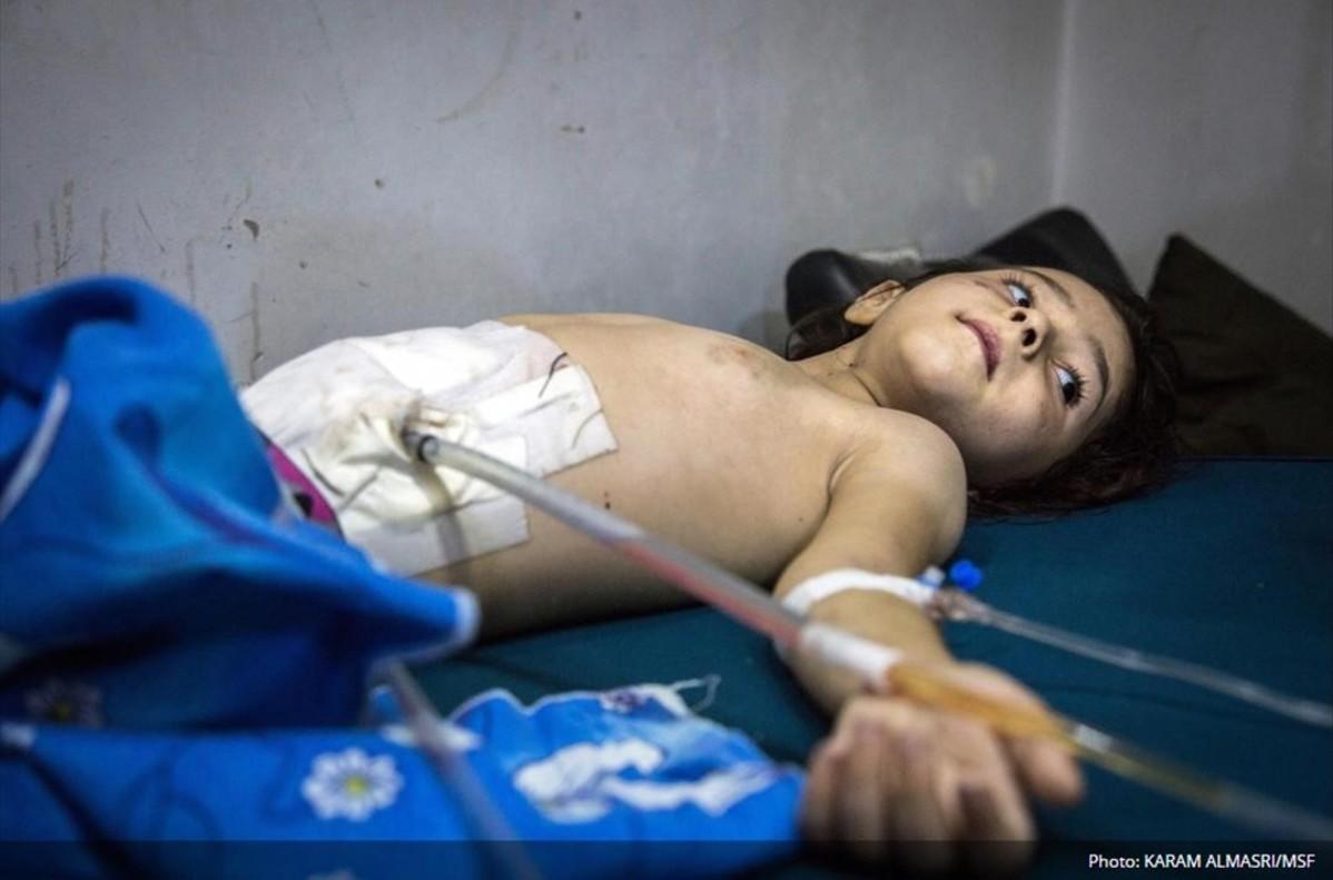 Un niño de 5 años se recupera de las heridaspor restos de metralla en bombardeos en Al Sukkari, en el este de Alepo.
