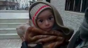 A toddler is held up to the camera in this still image taken from video said to be shot in Madaya on January 5, 2016. Warnings of widespread starvation are growing as pro-government forces besiege an opposition-held town in Syria and winter bites, darkening the already bleak outlook for peace talks the United Nations hopes to convene this month. To match MIDEAST-CRISIS/SYRIA-TOWN Handout via Social Media Website ATTENTION EDITORS - THIS PICTURE WAS PROVIDED BY A THIRD PARTY. REUTERS IS UNABLE TO INDEPENDENTLY VERIFY THE AUTHENTICITY, CONTENT, LOCATION OR DATE OF THIS IMAGE. FOR EDITORIAL USE ONLY. NOT FOR SALE FOR MARKETING OR ADVERTISING CAMPAIGNS. THIS PICTURE IS DISTRIBUTED EXACTLY AS RECEIVED BY REUTERS, AS A SERVICE TO CLIENTS. EDITORIAL USE ONLY. NO RESALES. NO ARCHIVE.