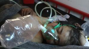 Un niño sirio recibe tratamiento tras el ataque con gass tóxico.