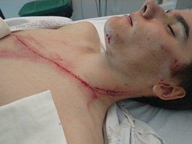 Andoni Azkarate con la herida que se produjo tras impactar con un guardarraíl en el Campeonato de Euskadi de ciclismo amateur.