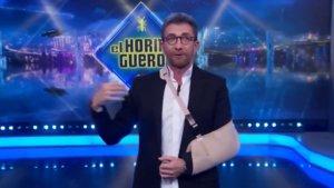 """Pablo Motos presenta 'El Hormiguero' tras su operación del hombro: """"Si no me tiráis a una piscina estoy perfecto"""""""