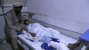 Un niño herido en un ataque recibe cuidados médicos en un hospital de Jalalabad, Afghanistan.