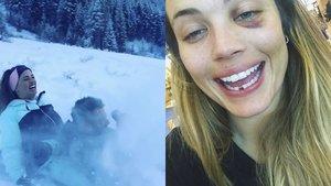 Alyson Eckmann comparte su aparatoso accidente de trineo en el que perdió un diente